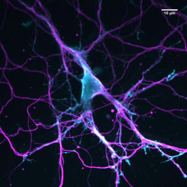 Primary culture of hippocampal neurons from rat embryos